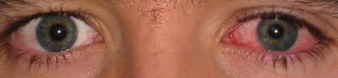 Fotografia dos olhos de uma pessoa com conjuntivite.
