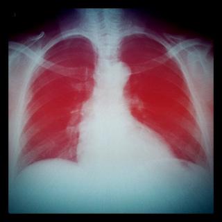 Radiografia de tórax, com o espaço dos pulmões em vermelho.