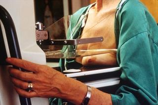 Mama sendo comprimida para obter imagem mamográfica ótima.
